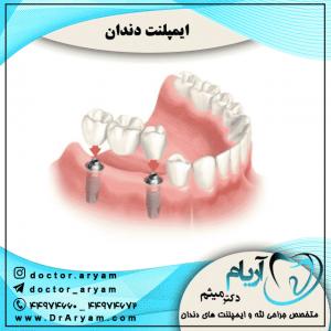 ایمپلنت-دندان