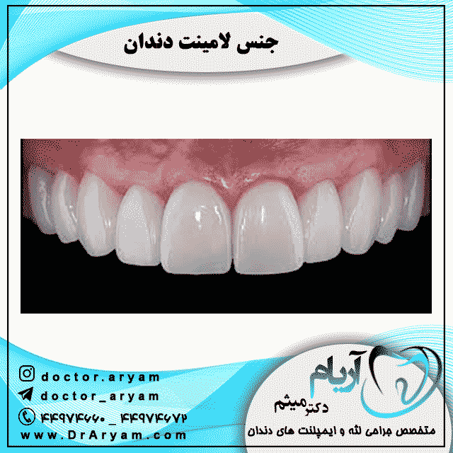 جنس-لامینت-دندان
