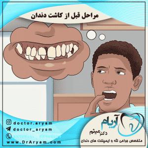 مراحل قبل از کاشت دندان