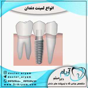 انواع-لمینت-دندان