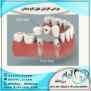 جراحی-افزایش-طول-تاج-دندان