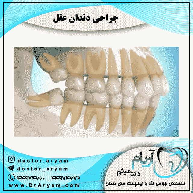 جراحی-دندان-عقل