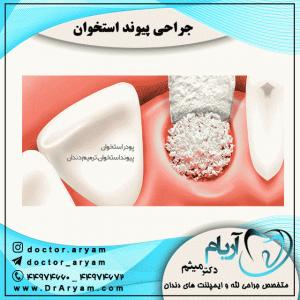 جراحی-پیوند-استخوان