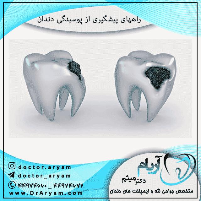 راههای پیشگیری از پوسیدگی دندان