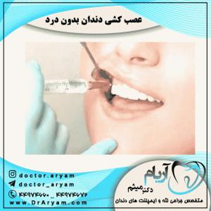 عصب-کشی-دندان-بدون-درد