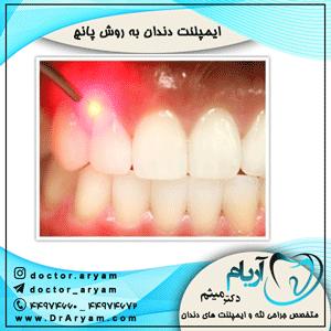 ایمپلنت-دندان-به-روش-پانچ