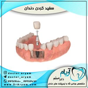 بهترین-نوع-ایمپلنت-دندان