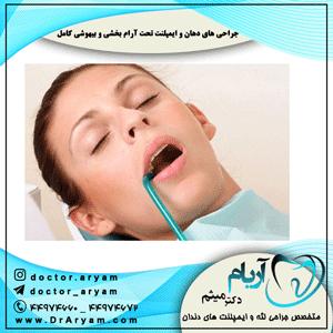 جراحی-های-دهان-و-ایمپلنت-تحت-آرام-بخشی-و-بیهوشی-کامل