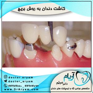 کاشت-دندان-به-روش-بریج