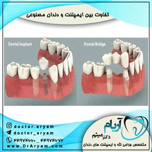 تفاوت-بین-ایمپلنت-و-دندان-مصنوعی
