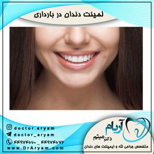 لمینت دندان در بارداری