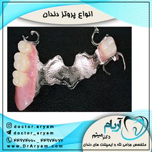 انواع-پروتز-دندان