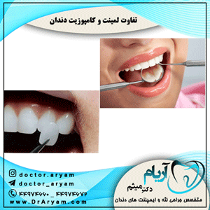 تفاوت لمینت و کامپوزیت دندان