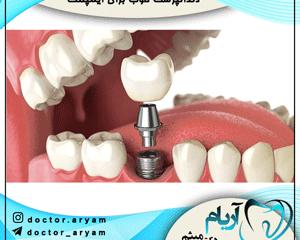 دندانپزشک خوب برای ایمپلنت
