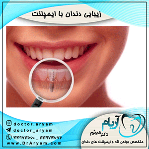 زیبایی دندان با ایمپلنت