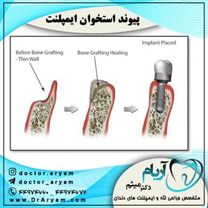پیوند استخوان ایمپلنت