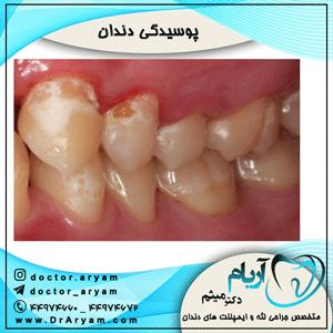 پوسیدگی-دندان