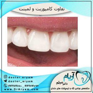 فوق تخصص ایمپلنت دندان