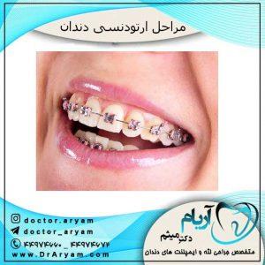 ابزار ارتودنسی دندان