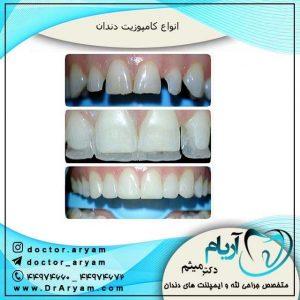 انواع کامپوزیت دندانی
