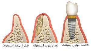 مواد پیوند استخوان
