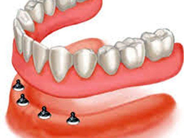 کاربرد مینی ایمپلنت دندان