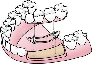 انواع مختلف ایمپلنت دندانی
