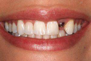 ایمپلنت دندان جلو با بهترین متخصص ایمپلنت
