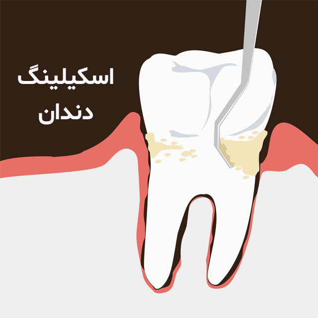 اسکیلینگ دندان و متخصص ایمپلنت