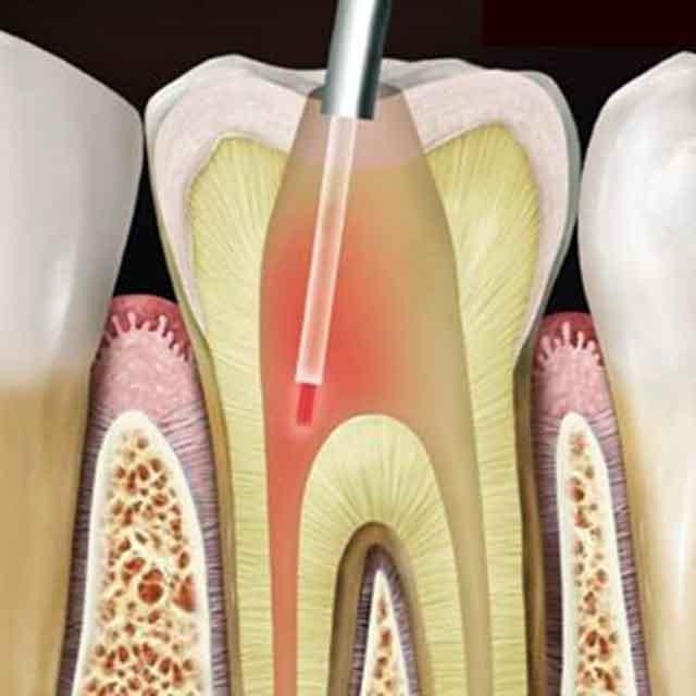 جراحی آپیکو دندان