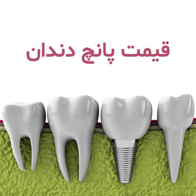 هزینه پانچ دندان