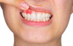 جراحی های دندان