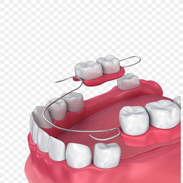 دندان مصنوعی جزئی