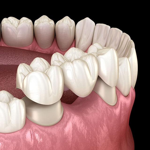 قیمت بریج دندان