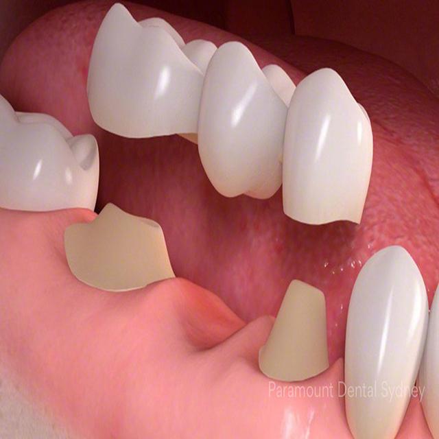 هزینه بریج دندان