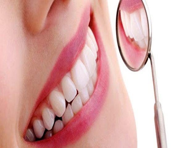 روش های اصلاح ظاهری دندان