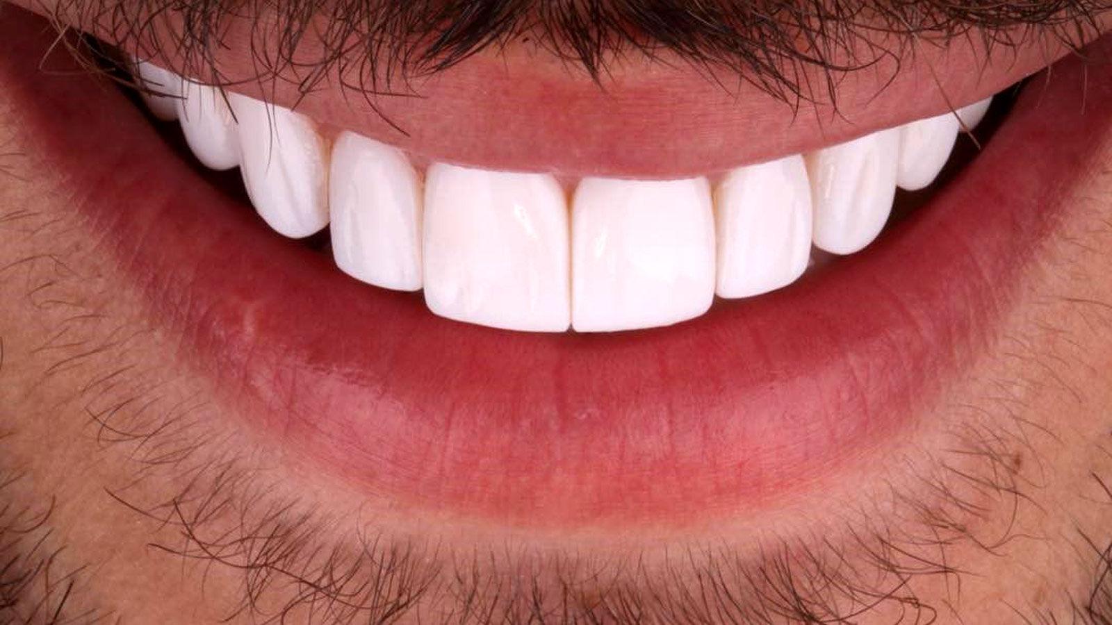 انجام لمینت دندان
