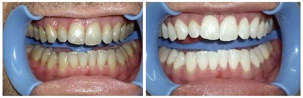 سفیدکردن دندان با بلیچینگ