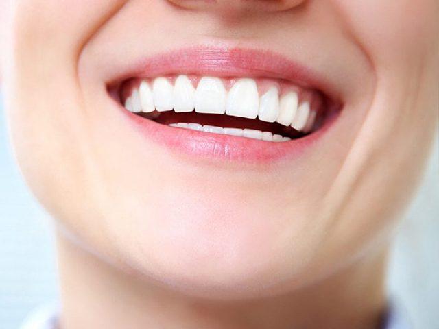 کامپوزیت و بهبود لبخند