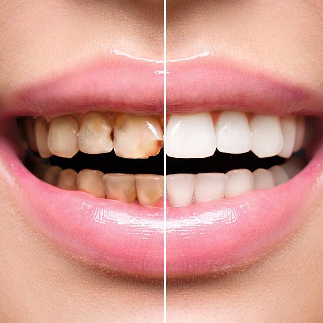 مقایسه کامپوزیت با دندان خراب