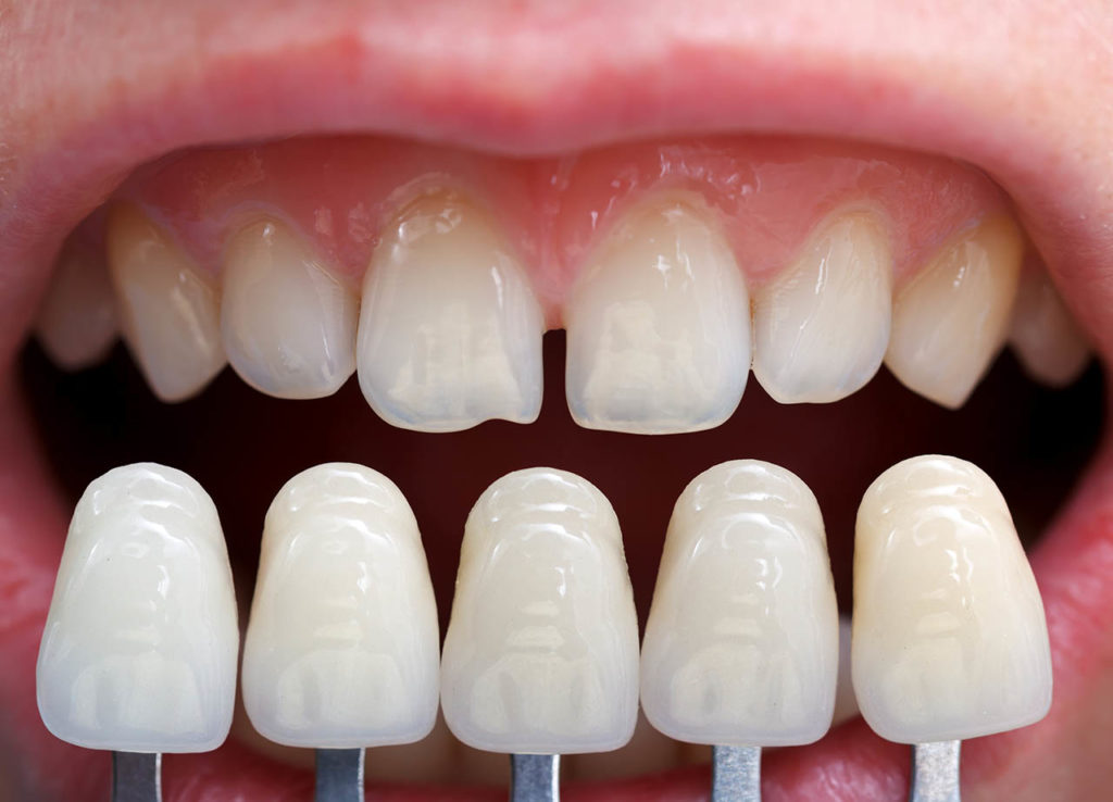 لمینت دندان به رنگ های مختلف