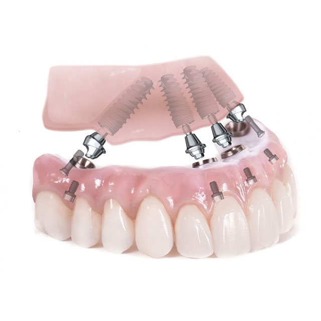 ایمپلنت به جای دندان از دست رفته