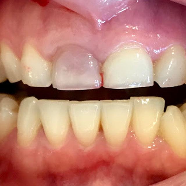 تغییر کردن رنگ دندان