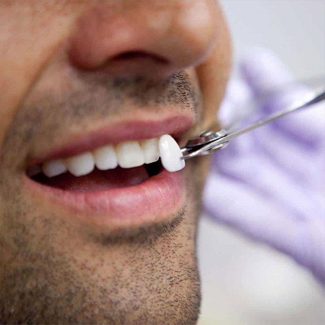 فرآیند روکش دندان