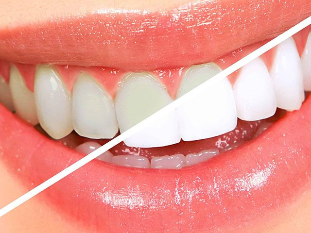 سفید شدن دندان