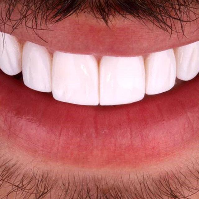 سفیدی دندان با روش لمینت