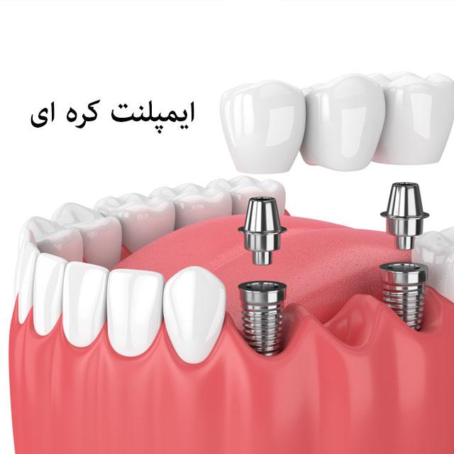 کاشت ایمپلنت جایگزین دندان طبیعی