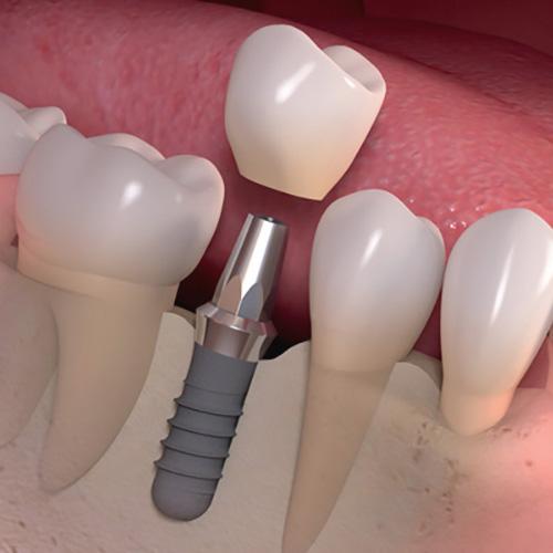 کاشت ایمپلنت به جای دندان از دست رفته