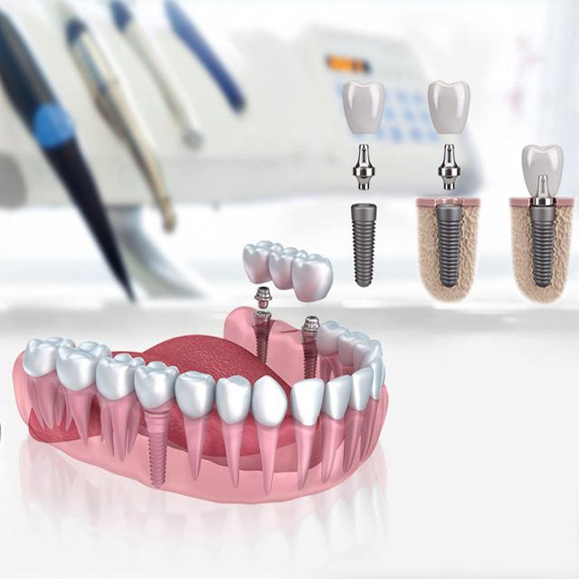 ایمپلنت دندان جایگزین دندان از دست رفته
