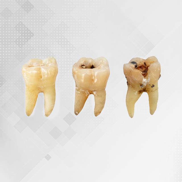 عفونت و پوسیدگی دندان